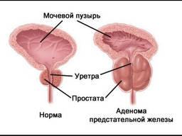 Аденома предстательной железы. Комплекс