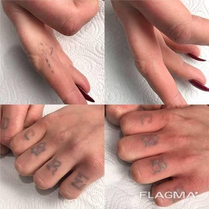 Лазерное удаление тату/татауаж