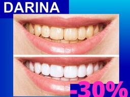 Отбеливание Зубов | Відбілювання Зубів