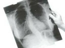 Рентген-снимки